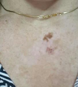 סרטן עור מלנומה שלב 3